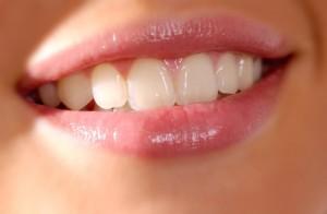 Gesunde Zähne - so sehen gepflegte Zähne aus