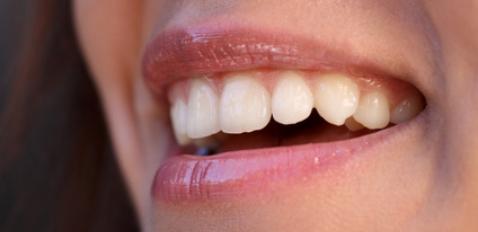 Gesunde Zähne - Tipps rund um die Zahnpflege